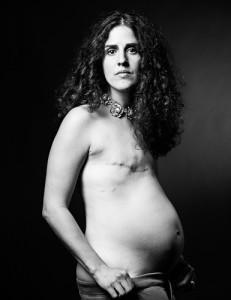 mastectomy 4