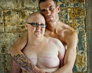 mastectomy 6
